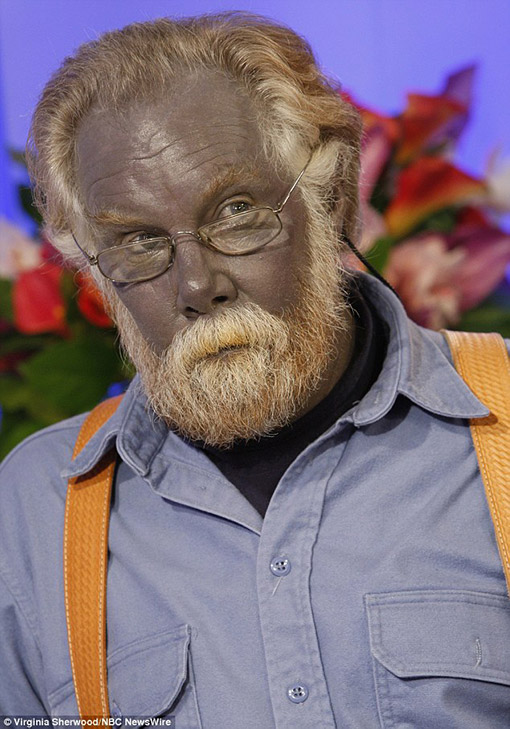 picture of paul karason who turned blue after using silver creams for a skin condition